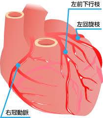 心筋梗塞 血管3本
